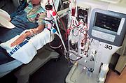 Nederland, Nijmegen, 1-10-2003Nierpatient ligt aan nierdialyse apparaat. Nierziekte, donornier, niertransplantatie, ernstige ziekte, gezondheidszorg, spoelen.Foto: Flip Franssen/Hollandse Hoogte