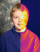 Combination thermogram-visible light image of a boy.  This image is made from two images:  A normal visible light image and a far infrared image.  The different colors represent different temperatures on the object. The lightest colors are the hottest temperatures, while the darker colors represent a cooler temperature.  Thermography uses special cameras that can detect light in the far-infrared range of the electromagnetic spectrum (900?14,000 nanometers or 0.9?14 µm) and creates an  image of the objects temperature.