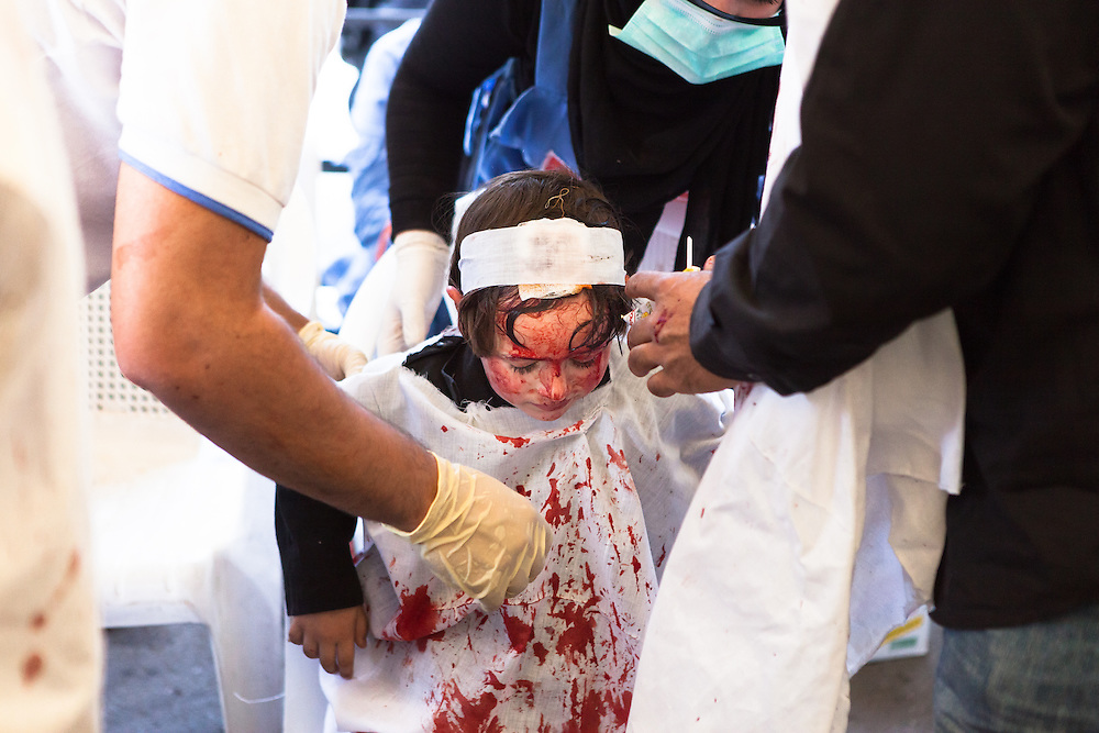 A young boy receiving medical attention during the Day of Ashura, Nabatieh, Lebanon (November 14, 2013). The cut in his forehead was made by his father as part of the local mourning ritual.