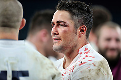 A bloodied Brad Barritt of England looks on after the match - Photo mandatory by-line: Patrick Khachfe/JMP - Mobile: 07966 386802 29/11/2014 - SPORT - RUGBY UNION - London - Twickenham Stadium - England v Australia - QBE Internationals