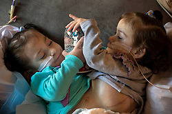 Nov 16, 2016 - Palo Alto, California, U.S. - Conjoined twins, Eva and Erika Sandoval, 2, play with a snow globe while living temporarily in an apartment in Palo Alto near the Lucile Packard Children's Hospital while undergoing tissue expansion prior to their upcoming separation surgery. (Credit Image: © Lezlie Sterling/Sacramento Bee via ZUMA Wire)