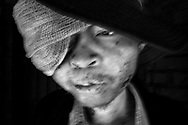 NKHOTAKOTA, MALAWI - JULY 13, 2016:<br /> Peter Chirwa, from Mphamba village in Nkhotakota District, with 26 years old is one of the serious cases of discrimination in Malawi. Three years ago it was diagnosed with tumor but he doesn't have a treat and help in the hospital in Nkhotakota for being albino. Lack of money it does not allow him to go to the Lilongwe hospital where he could be treated even if only to take away the horrible pain says Peter. The tumor status is getting worse and his skin meat itself is beginning to rot doubt the fact that no treatment or help. To try not make worse the day of Peter is his spent inside of the house. Unfortunately cases of discrimination in Malawi and Mozambique are a lot and albinos ask for help with organize events, and try to show the society that they are human beings.