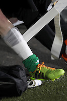 Illustration bandage protege tibia  - 06.03.2015 - Nancy / Laval - 27eme journee de Ligue 2 <br />Photo : Fred Marvaux / Icon Sport