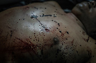 Bullet hole above the heart of one of three victims of extrajudicial killings examined on the night of 21 June 2017 in Caloocan.  In fact, all 3 victims of extrajudicial killings examined by the photographer that night had bullet wounds in their forearms suggesting that the victims had attempted, and failed, to protect themselves from assassins' bullets by blocking shots with their arms.  They were killed execution-style with bullets to the heart and the head.  Metro Manila, Philippines