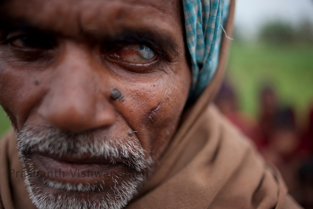 65 year od, Singeshwar Ram has a sharpnel injury on his left cheek allegdly by a bullet fired by the local police and private security of the Balmukund Cement and Roofings Ltd. (BCRL) while peacefully demonstrating outside the asbestos factory on January 22, 2011, Chainpur, Muzzafarpur Dist. Bihar, India, on Thursday, February 17, 2011. Photographer: Prashanth Vishwanathan/Bloomberg News
