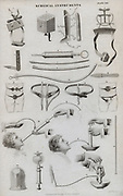 Various medical instruments including Tourniquets, Spling, Scarifier, Hernia braces, and Stomach pump. Engraving c1880.