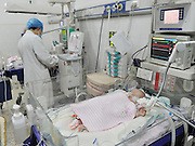 NANCHANG, CHINA - China Out - Finland Out<br /> <br /> Conjoined Twins Are Successfully Separated<br /> <br /> Two-month-old twin girls lie in two incubators at Children's Hospital of Jiangxi Province on January 7, 2013 in Nanchang, Jiangxi Province of China. The two conjoined infants, who were born conjoined at the abdomen and liver, have successfully been separated through an operation this morning. <br /> ©Exclusivepix