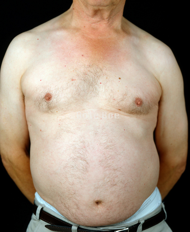Belly of an elderly man