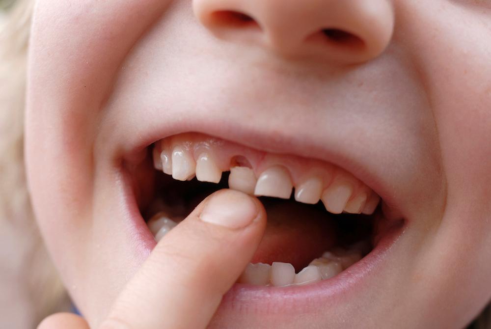 Ein kleiner Junge wackelt an seinem Milchzahn    |  young boy with loose tooth   |