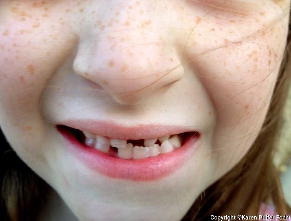 A young girl missing teeth.