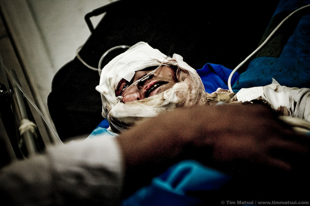A victim of acid attack, a vicious but not illegal assault in this post conflict country where victimization is all too common. While acid attack isn't reported with much vigor, health care workers estimate a rather high frequency, even citing an estimated per-capita average higher than Bangladesh, the poster-child country for acid attack.