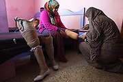 Palestinian Manar Shabari sits on her bed in Jabalya , Gaza where the family from Beit Hanoun are taking refuge as her sister helps her to try on  her  prosthetic legs that have been fitted with festive shoes to be worn at her brother's wedding December ,30,2014 .<br /> <br />  Manar Shabari,14, suffered severe injuries  on July 24 during an Israeli military assault on  the UN school in Beit Hanoun, in northern Gaza .Her mother and brother and three other family members were amongst the more than 15 killed at the school where  hundreds of displaced civilians were taking shelter during the war between Israel and Palestinian militants in the Hamas-controlled Gaza Strip . (Photo by Heidi Levine/Sipa Press).