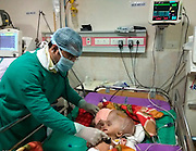 "EXCLUSIVE<br /> Doctors successfully help baby boy diagnosed with world 's largest head<br /> <br /> Doctors in India performed a successful surgery on a seven-month-old baby boy with giant head measuring 96cm in circumference — that is among the world's largest. <br /> <br /> The doctors have removed 3.7 liters of fluid from baby's head and managed to reduce the size of the head to 70cm in the past one and a half month's of treatment<br /> <br /> Dr Dilip Parida, superintendent of the AIIMS hospital at Bhuwaneshwar, said: ""The child was admitted with us since November 20. The head was containing almost 5.5 liters of fluid inside that. Till now we have removed 3.7 liters of fluid so far by external ventricular drainage. Subsequently, we have placed a stunt inside baby head which is working perfectly. Now, the circumference of the head has come down from 96cm to 70cm.  The cognitive functions of the child have improved a lot. The child is stable and has responded well to the treatment. Since the cranial bones are not fused and floating, now the real challenge is to find a way to adjust the cranial bones. We have applied bandages around the skull and planning to do cranoplasty at a later stage, if required. The baby was absolutely bed-ridden earlier, now it can take turns. We are happy with the developments and the parents are also happy to see the improvements,"" says Dr Parida. <br /> <br /> Roona Begum, a Tripura-born girl had made headlines around the world after her head swelled up to 94 cm due to the same medical condition in 2011. <br /> <br /> According to medical records, Roona Bengam's head was the largest. ""We are checking medical records across the globe to verify if an hydrocephalus existed of an even bigger size,"" says Dr Parida.<br /> <br /> Mrityunjay's parents — Kamalesh Das and Kavita — are from Ranpur of Nayagarh district, India. Kamalesh, 35, works as a daily wage worker in Kolkata, while his wife is a homemaker who lives in Ranpur. <br /> <br /> ""We didn't know what to do, where to go? After making rounds of many"