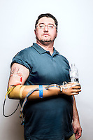 Igor Spetic lost his hand in an industrial accident and is now testing a new prosthetic hand with a nerve interface that allows for feeling in the hand.