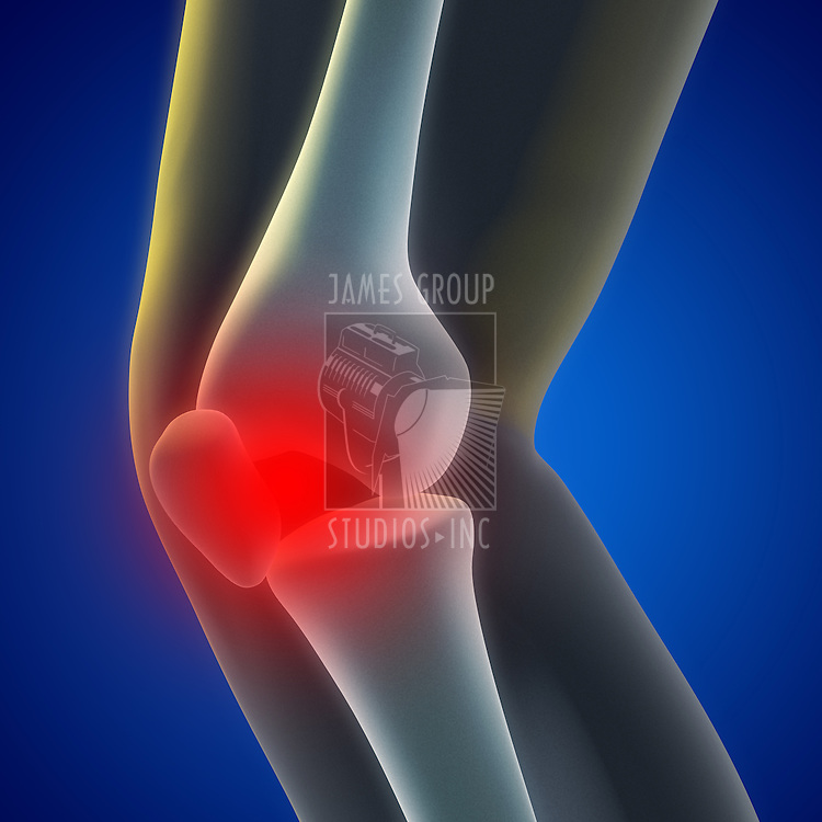 An illustration of a knee xray showing the injury.