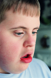 Closeup portrait of teenage boy with Downs Syndrome,