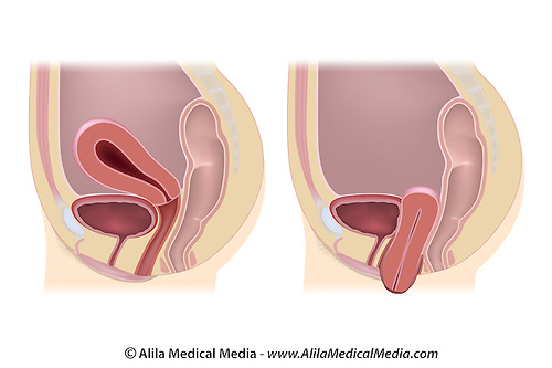 Prolapse cervix diagram cervix falling out wiring diagrams uterine prolapse unlabeled alila medical images uterine prolapse unlabeled alila medical images female dropped cervix prolapsed uterus unlabeled diagram ccuart Image collections