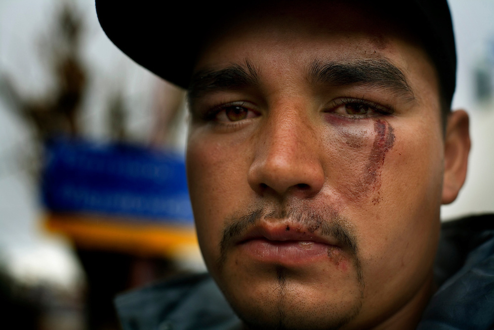 A man sits near the border, beaten, after having been deported by the US Border Patrol while attempting to cross into the US.  He claims he was injured during his capture.