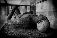 "One of the estimated 3,500 victims from the AD 79 cataclysmic eruption of Vesuvius that destroyed Pompeii.  It is now believed that victims did not have time to suffocate, as was long considered the cause of death, but died immediately from super-heated (300C/500F) gas sent down the mountain.  Vesuvius is experiencing its quietest period in 500 years with no eruptions since 1944, which makes many of the 3 million residents living around its flanks nervous.   The Italian government has hatched a plan to offer roughly US$30,000/ family to 600,000 people living within the ""red zone"" to induce 20% of the population to move to safer areas."