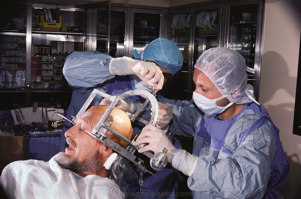 Medicine: Brain Operation. Doctors adjust a metal guide that is secured by screws in order to precisely place a radioactive tube through a hole drilled in the patient's skull to destroy a brain tumor. (1983)