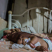 Eduarda Vitoria (5 months), with microcephaly, while sleeping inside her house, a shelter in the slum of Santa Luzia in Recife, Pernambuco.