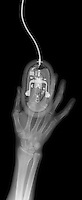 X-ray image of a hand and computer mouse (white on black) by Jim Wehtje, specialist in x-ray art and design images.