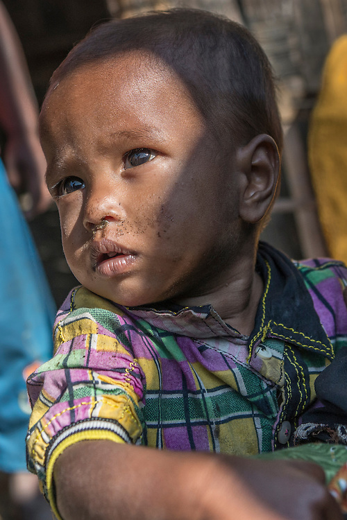 A baby suffering from malnutrition in a refugee camp near Sittwe. 2015-02-05.