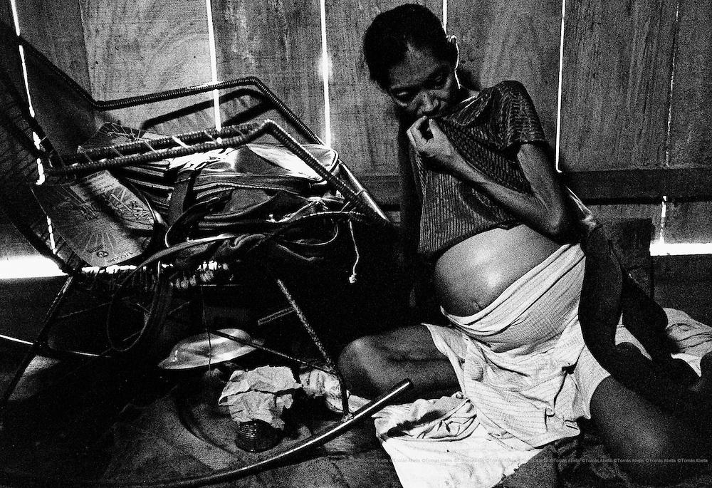 This woman has tuberculosis while pregnant. Belen, Peru.