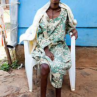 Fistula patient before taken for care with Hamlin Hospital in Bahir Dar; discovered waiting at an unstaffed health post