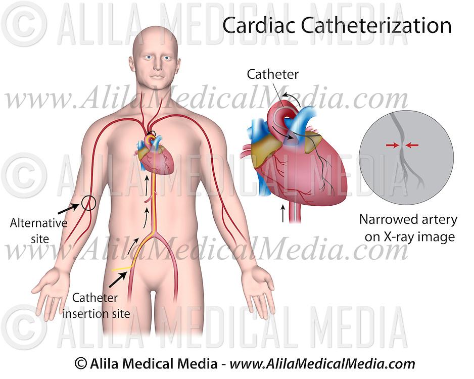 Cardiac Catheterization Alila Medical Images