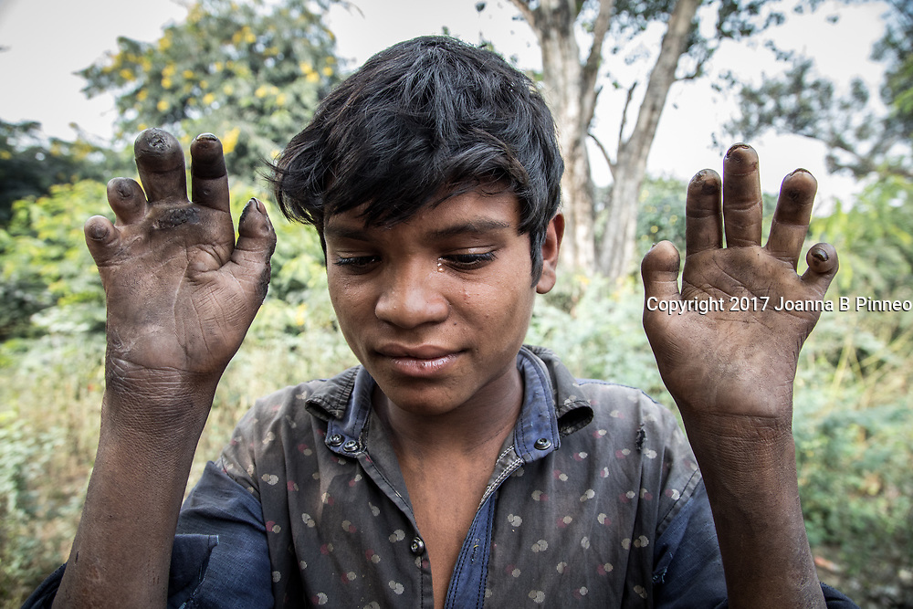 Jamshila Bina, Sonbhadra, Uttar Pradesh, India<br /> Subas Byastik, 16 years old. When he was twelve Subas noticed cracks on the inside of his hands. Now four years later his hands are wasting away and turning black. He does not work because he cannot use his hands properly. As we talked he started to cry. The local doctors have no answers and he can&rsquo;t afford other healthcare. What we know is that he lives near a number of thermal electric plants in the region and that it and the water supply to his village is polluted, most likely with heavy metals. This are is known as the &ldquo;Energy Capital of India&rdquo; because after large coal deposits were found many thermal power stations opened. Chemical plants and other industrial operations also came to the area.