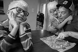 Bryan Hoben plays games with his children Forest and Lotus Hoben while social distancing during the coronavirus pandemic in the Hudson Valley, New York. Forest and Lotus Hoben, ages 10 and 6, were adopted from China and have albinism, a rare group of genetic disorders that cause the skin, hair, or eyes to have little or no color. Albinism is also associated with vision problems. According to the National Organization for Albinism and Hypopigmentation, about 1 in 18,000 to 20,000 people in the United States have a form of albinism.