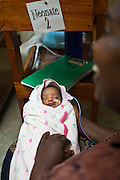 Baby Shemeririwe is only 5 days old. She was premature, born at 30 weeks term. He mother stays with her in the neo-natal unit at Bwindi Community hospital, Uganda. She is about to have a cannula fitted so she can receive Dextra that will help with her early development.