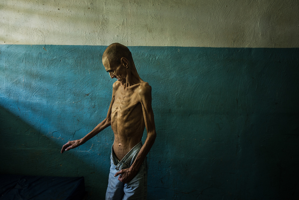 BARQUISIMETO, VENEZUELA - AUGUST 25, 2016: Schizophrenic patient, Omar Mendoza is badly malnourished, and only weighs 35 kilos. His weight dropped to 32 kg in June, but the nursing staff have been feeding him as many extra portions as they can spare to help him gain weight.  Over half of male patients at El Pampero are underweight. The economic crisis that has left Venezuela with little hard currency has also severely affected its public health system, crippling hospitals like El Pampero Psychiatric Hospital by leaving it without the resources it needs to take care of patients living there, the majority of whom have been abandoned by their families and rely completely on the state to meet their basic needs. The hospital has not employed a psychiatrist for over two years. The halls are filled with sounds of patients crying or screaming, and an overpowering stench of urine and feces. There is a shortage of food, and drugs used to combat bipolar disorder, epilepsy, schizoaffective disorder and chronic anxiety are now in short supply, as are numerous sedatives and tranquilizers needed to care for patients. PHOTO: Meridith Kohut