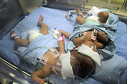 ACEH, INDONESIA - MAY 06: <br /> <br /> Conjoiend Head Twin Babies<br /> <br /> Conjoined head twins babies of Southeast Aceh being treated on Neonatal Intensive Care Unit (NICU) at Zainal Abidin Hospital on May 06, 2015  in Banda Aceh, Aceh, indonesia. Babies female from Bandi Shah Putra and Siti Hadijah was born prematurely by Caesarean section at Sahudin Kutacane hospital , and now handled by some expert physicians.<br /> ©Juen Jr/Exclusivepix Media