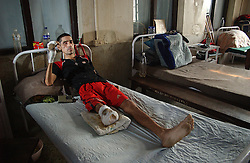 Hari Prasad, 34, from Kachanpur District recovers in Veri Anachal Hospital in Nepalganj, Nepal March 16, 2005 after he was severely injured and lost a leg when Maoist insurgents blew up a bus near a bicycle he was riding on January 18, 2005. (Ami Vitale)