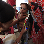 India: tackling undernutrition in Madhya Pradesh