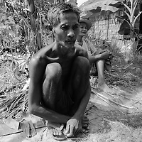 "SIEM REAP, FEBRUARY-28 : Gror Som, 54, a schizophrenic patient, trembles as he remembers his life under Pol Pot...One day he was thrown into a pond with 30 villagers and burried alive by the Khmer Rouge. By coincidence he was sniffed out at night by 2 dogs who were dragging him to a village... .The country's entire infrastructure, including the health system, was destroyed during the Khmer Rouge reign and years of civil war. Only in recent years , several non governmental organizations have helped provide mental health services and training in the country in collaboration with local healers..Mental health service is relatively new to Cambodia, but much needed. Before the Pol Pot regime Cambodia only had one mental hospital for the whole population which was destroyed during the years of horror..Modest by western standards, the first mental health clinic for all of Cambodia was set up in Siem Reap by a team from Harvard University in 1994. .This is because many refugees settled down in and around Siem Reap. 102 doctors and counsellers were trained by the Harvard specialists in the late nineties as more than 80 percent of the population was traumatized by the Pol Pot years, and even more during their years in the refugee camps. Studies have shown that most  Cambodians showed PTSD ( Posttraumatic Stress Disorder) symptoms similiar to the Jewish survivors of concentration camps. . .As for the future, Cambodians are sceptical if there'd be a fair trial for the people . It'd be very difficult to bring patients to the capital Phnom Penh to witness . Due to Cambodias underdevelopped infrastructure, many Cambodians are even not aware of the trial preparations. There's no money and also many people do not want to be reminded. says a counselor in Siem Reap:""  it only would open old wounds. People rather suffer in silence"".."