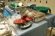 Steve's diseased liver is weighed as Anna's donated liver, packed in ice, sits nearby covered with a green cloth.