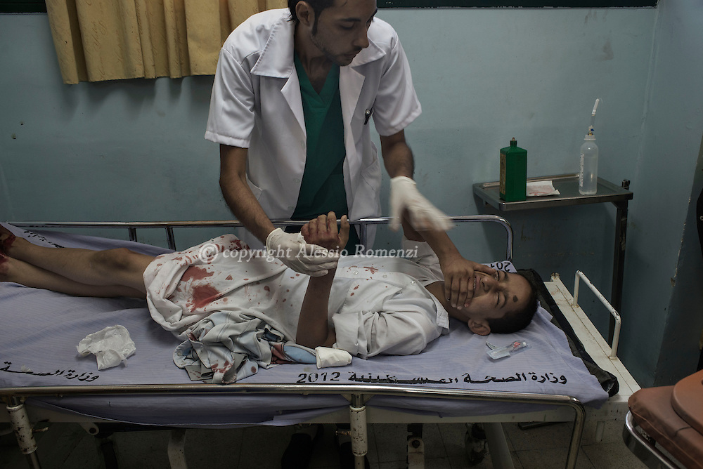 Gaza Strip, Khan Younis: A child is treated in Khan Younis hospital as he suffered wounds by Israel airstrike on July 10, 2014. ALESSIO ROMENZI