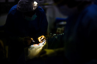 Dr. Albert Maguire begins the surgery on Corey Haas, 8, in an operating room at the UPenn Medical Center in Philadelphia, PA on Thursday, September 25, 2008.