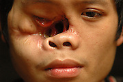 "Tong Hua Her, near Vang Vieng, Laos, June 29, 2006.  Half of Tong's face is missing from a bullet wound leaving him blind in one eye with his nasal cavity exposed.  His father and group leader, Blia Shoua Her yelled, ""Communist!  Communist do this!""  His father says on July 15, 2003, Tong and some family were ambushed by Communist Lao troops who were on patrol...**EXCLUSIVE, no tabloids without permission**  .Pictured are a group of Hmong people who report an attack against them April 6, 2006 by Lao and Vietnamese military forces.  26 people perished, 5 were injured, and 5 babies died shortly after because their dead mothers could not breast-feed them.  Only one adult male was killed, the other 25 victims were women and children (17 children).  The Lao Spokesman for the Ministry of Foreign Affairs says this is a fabrication, an investigation has been completed, and there was no attack.  The Hmong group says no officials have interviewed witnesses or visited the crime scene, a point the Lao Spokesman did not deny.  ..The Hmong people pictured have hidden in remote mountains of Laos for more than 30 years, afraid to come out.  At least 12,000 are said to exist, with little food, scavenging in the jungle. Most have not seen the modern world.  Since 1975, under the communists, thousands of reports evidence the Hmong have suffered frequent persecution, torture, mass executions, imprisonment, and possible chemical weapons attacks.  Reports of these atrocities continue to this day.  The Lao Government generally denies the jungle people exist or that any of this is happening.  The Hmong group leader, Blia Shoua Her, says they are not part of the Hmong resistance and want peace.  He claims they are just civilians defending their families, hoping to surrender to the UN.."