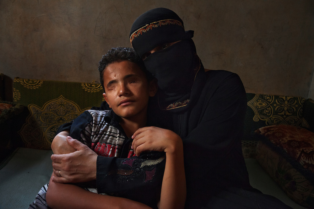 """Saleem al Harazi, who lost both eyes to a sniper, is cradled by his mother in Sana, Yemen, March 26, 2012. The 12-year-old was shot when he joined antigovernment protesters in Sana in March 2011. """"I loved them and wanted to stand with them,"""" he recalls. """"I wanted them to end poverty."""" They were the last people he ever saw, and he has no regrets: """"I am still happy I was able to witness the protests firsthand."""""""