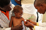 Medical staff measure the upper arm circumference of a child who may be malnourished, at the local hospital in Masi Manimba, DRC. The measurement is an indicator of the severity of the child's condition.