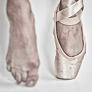 Feet of a ballerina, one with a ballet pointe shoe and the other barefoot.    ( Kike Calvo via AP Images )