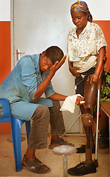 An Angolan who lost her leg to a land mine gets fitted for a prosethetic leg at the International Red Cross hospital in Huambo, Angola. Hundreds of thousands of Angolans  have lost limbs after stepping on a mine and in some towns one-in-four people have lost a limb or have been killed by mines. Despite a huge campaign to educate Angolans of the danger, most are forced to search the countryside for food despite the risk. .(Photo by Ami Vitale)