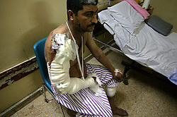Ali Khadhim, 40, recovers inside the al Kharkh Hospital, Baghdad, Iraq, Aug. 8, 2003. Khadhim, a taxi driver, was parked near the Jordanian embassy when a car bomb exploded in front of it the day before, killing 11 people.