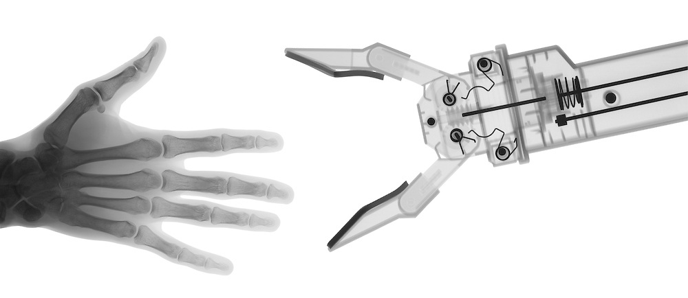 X-ray image of human and robot hands (black on white) by Jim Wehtje, specialist in x-ray art and design images.