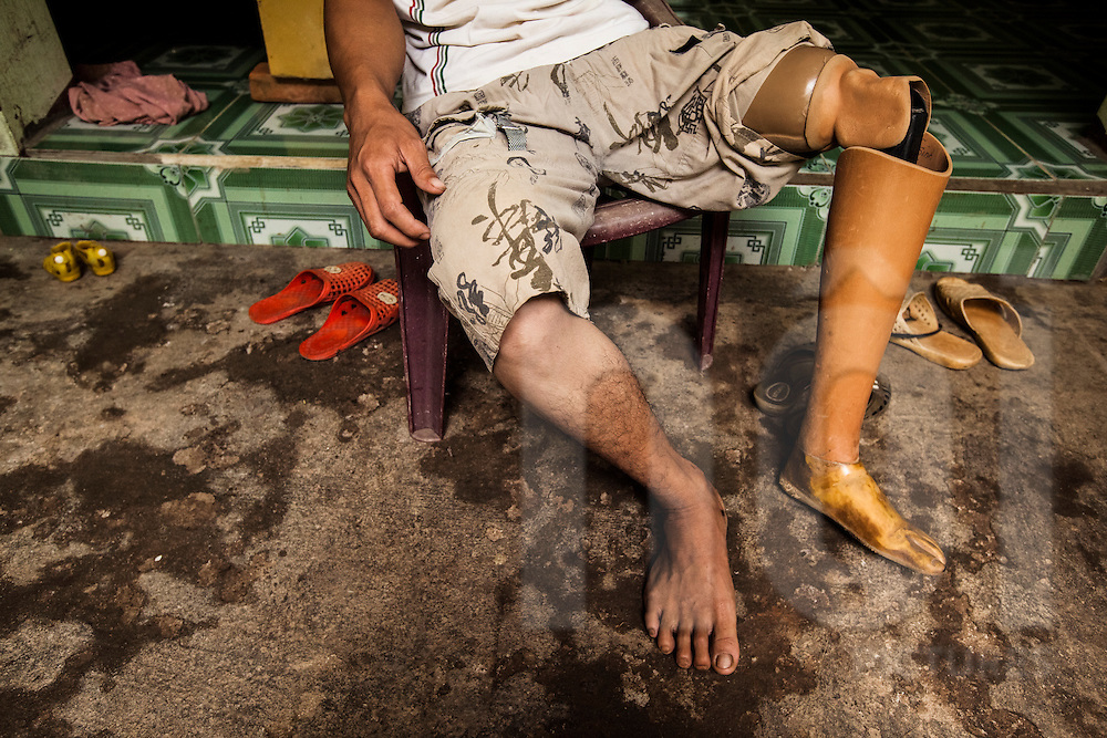 Lo Van Tan, an amputee who's leg was lost a few years ago in a brick factory accident in his home village. Vietnam's Prosthetic Outreach Foundation (POF) donated the prosthetic, Son La province, Vietnam, Southeast Asia