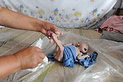 CHANGZHI, CHINA - JULY 27: (CHINA OUT)<br /> <br /> 80-day-old Baby With No Anus,Guo Enze born without anus defecates from penis at Chuandi Village Changzhi City, Shanxi Province of China. <br /> 80-day-old Guo Enze born without anus ate a little milk everyday and defecated toughly from penis. A charity project found Guo and donated milk powder to him. <br /> ©Exclusivepix Media
